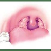 ניתוח שקד שלישי
