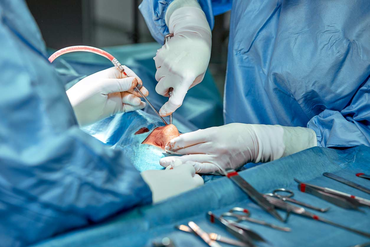 ניתוחי מחיצה וקונכיות